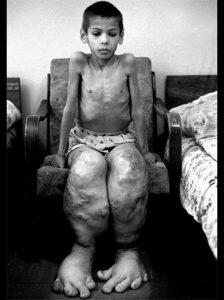 Последствия чернобыльской аварии от лучевой болезни фото Мутации после Чернобыля