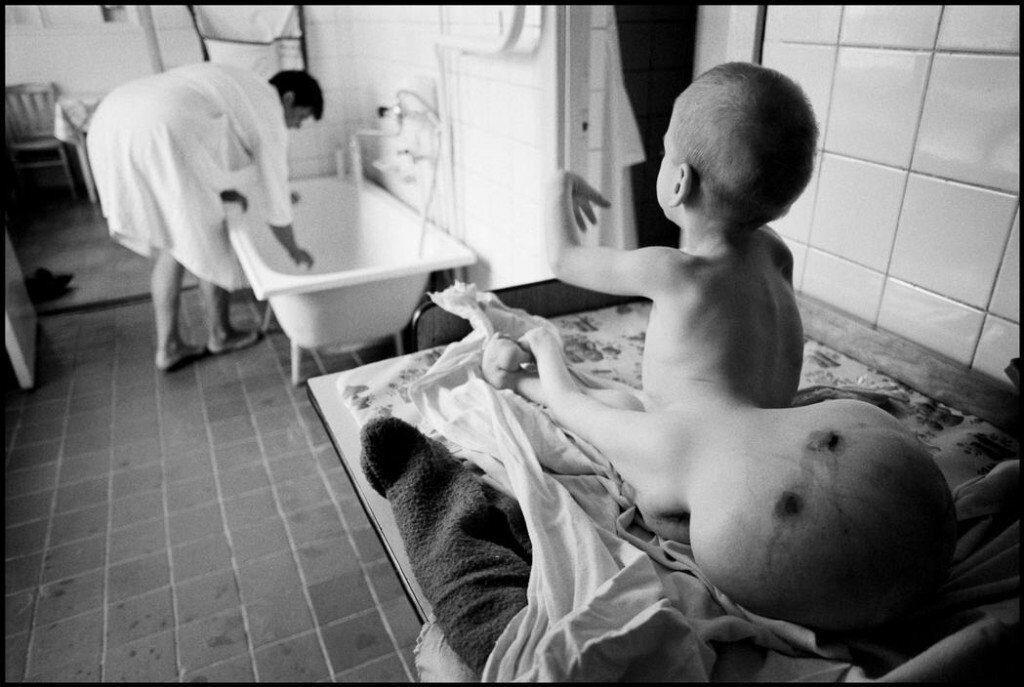 Мутация детей фото после Чернобыля