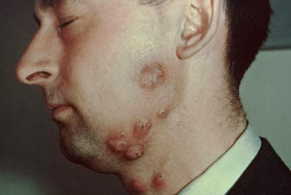 Лучевая болезнь фото. Последствия чернобыльской аварии фото. Чернобыль